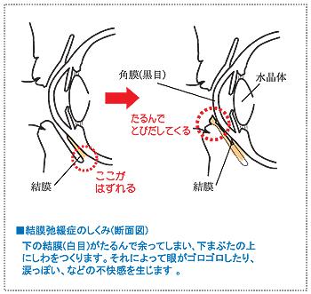 症 結膜 手術 弛緩 結膜弛緩症手術? 手術動画